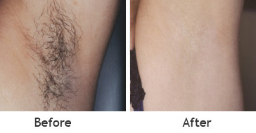 Laser Hair Removal Clinic In Amritsar